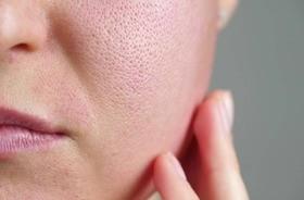 Cera tłusta (łojotokowa) – przyczyny, charakterystyka,  pielęgnacja skóry tłustej i mieszanej