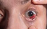 Wylew w oku – przyczyny, diagnostyka i sposoby leczenia pękniętego naczynka w oku