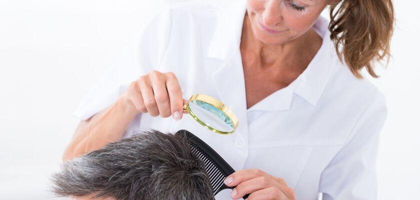Łuszczyca skóry głowy – jak leczyć?