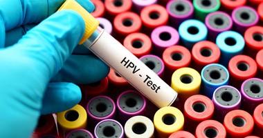 Wirus HPV i kłykciny kończyste - leczenie, początkowe stadium i prewencja