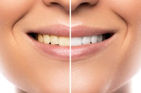 Wybielanie zębów – nowe rodzaje past, nowe metody