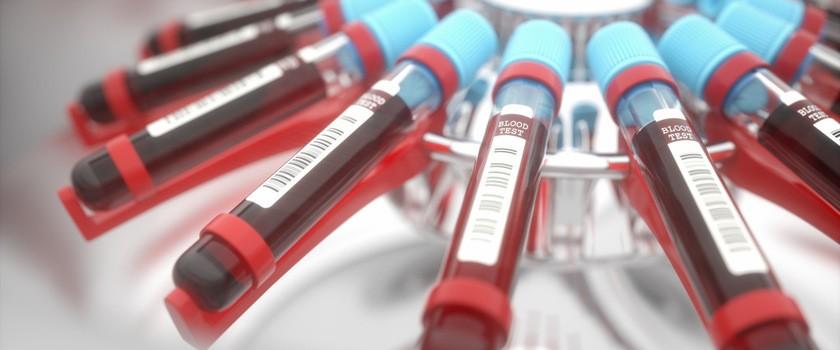 """Szybsza i efektywniejsza """"produkcja"""" sztucznej krwi"""