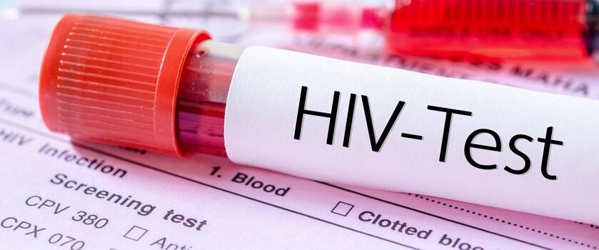 HIV (ludzki wirus niedoboru odporności) – charakterystyka, epidemiologia, transmisja. Objawy i nowoczesne terapie w leczeniu zakażeń wirusem HIV