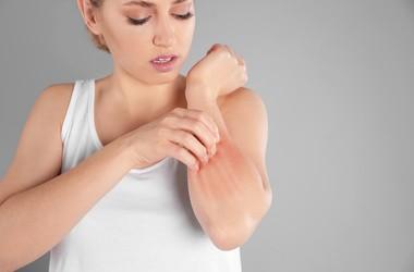 Grzybica skóry – przyczyny, objawy, leczenie dermatofitozy i drożdżycy skóry