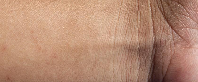 Potencjalny przełom w dziedzinie transplantacji skóry dzięki komórkom macierzystym