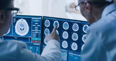 Nerwiak – objawy, diagnostyka, leczenie i rokowania przy nowotworze układu nerwowego