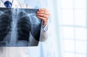 Leczenie raka płuc wymaga odmiennego podejścia u osób niepalących i u palaczy, twierdzą naukowcy