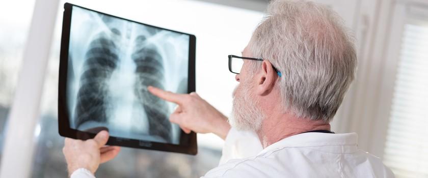 Rak płuc najgroźniejszym z nowotworów