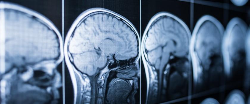 Przełom w dziedzinie regeneracji mózgu komórkami macierzystymi
