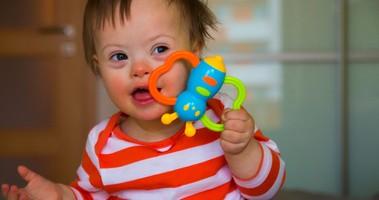 Zespół Downa – przyczyny, objawy, diagnoza wady wrodzonej płodu. Postępowanie lecznicze po rozpoznaniu trisomii 21