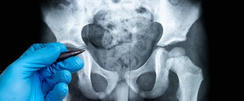 Radiologia (usg)