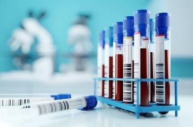 Czas protrombinowy (PT)– normy, podwyższony, obniżony. Jak się przygotować do badania INR?