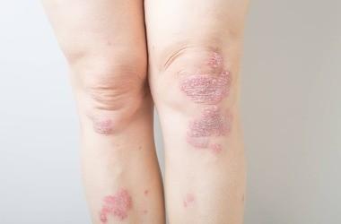 Choroby skóry (dermatozy) – jakie występują najczęściej? Jak je rozpoznać i leczyć?