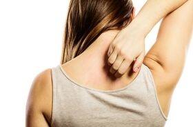 Świerzb skóry - objawy, rozpoznanie, leczenie. Na jakich partiach skóry występuje najczęściej?
