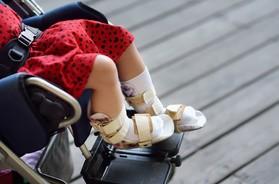 Mózgowe porażenie dziecięce – co to jest? Jakie są przyczyny i rodzaje MPD? Jak wygląda leczenie i rehabilitacja?