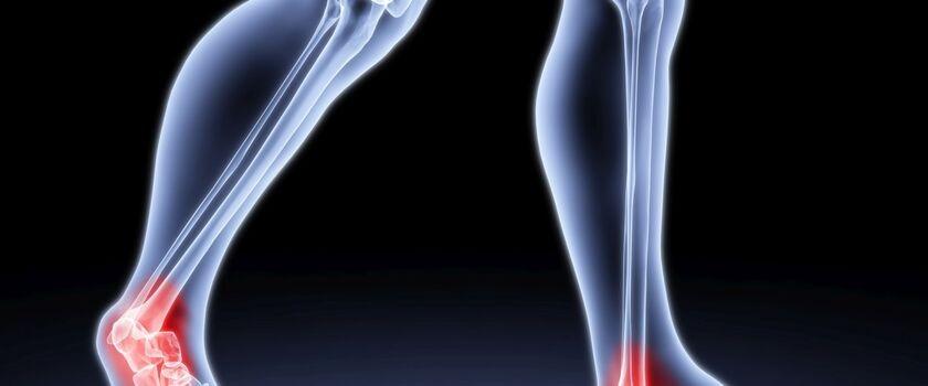 Osteoporoza - przyczyny powstawania, objawy oraz sposoby leczenia