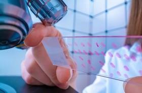 Nowe metody w diagnostyce raka piersi – szansą na skuteczne leczenie?