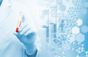 Badanie krwi pozwoli na wczesne rozpoznanie choroby Alzheimera