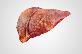 Marskość wątroby – przyczyny, objawy, diagnostyka, leczenie i rokowania