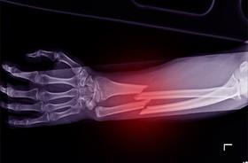Nowy lek może wspomóc leczenie złamań kości