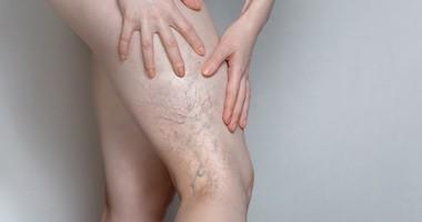 Leczenie żylaków – metody zachowawcze i chirurgiczne leczenia żylaków kończyn dolnych