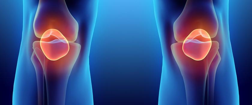 Chondromalacja rzepki – przyczyny, objawy, leczenie, fizjoterapia, ćwiczenia