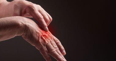 Reumatyzm – objawy, przyczyny i leczenie