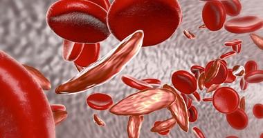 Anemia - objawy, leczenie i dieta