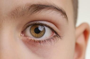 Oczopląs – przyczyny i leczenie mimowolnych ruchów gałek ocznych
