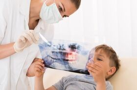 Urazy zębów u dzieci – jak postępować?