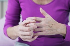 Guzki Heberdena – przyczyny, objawy, leczenie