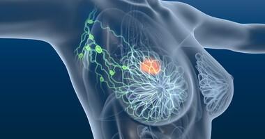 Leki dla kobiet dotkniętych rozsianym rakiem piersi (HER2-dodatnim) przestały być refundowane