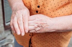 Zwyrodnienie stawów – przyczyny, objawy, leczenie choroby zwyrodnieniowej stawów