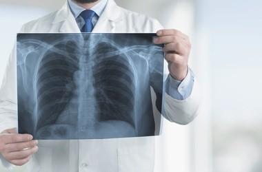 POChP – przyczyny, objawy, leczenie, rokowania w przewlekłej obturacyjnej chorobie płuc