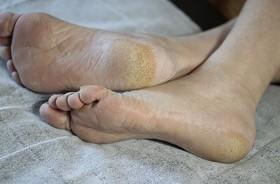 Stopa cukrzycowa – przyczyny, objawy, zapobieganie. Jak pielęgnować stopę cukrzycową?