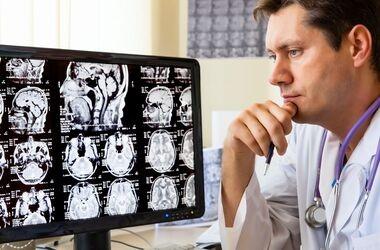 Prawie wszystko o...ataku mózgu