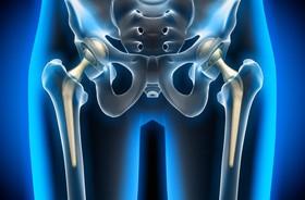 Ból biodra – przyczyny, diagnostyka, leczenie bólu stawu biodrowego. Ćwiczenia na biodra