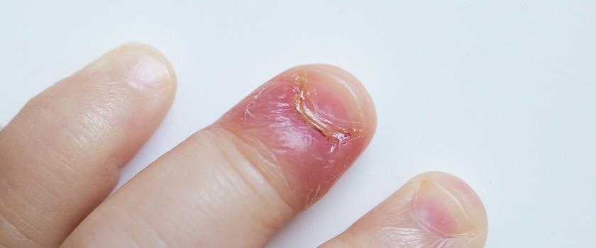 Stan zapalny – czym jest? Przyczyny, objawy i leczenie stanu zapalnego w organizmie