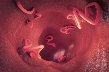 Glista ludzka – objawy glistnicy. Rozpoznanie, badania, leczenie zakażenia glistą ludzką