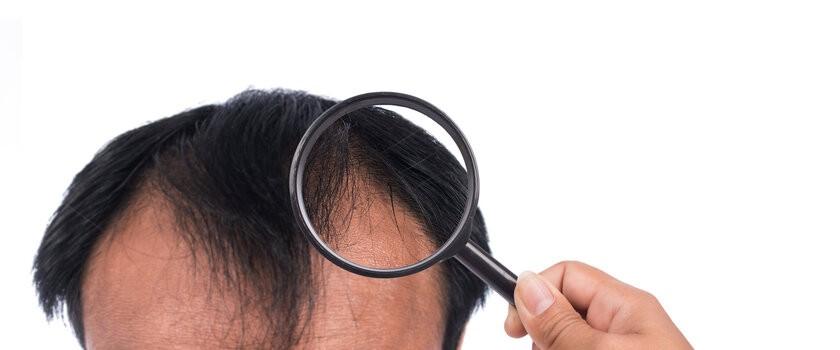 Przyczyny łysienia u kobiet i mężczyzn