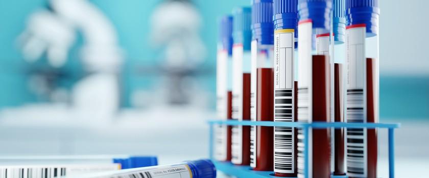 """Cholesterol LDL – badanie, normy, podwyższony. Jak obniżyć zbyt wysoki poziom """"złego cholesterolu""""?"""
