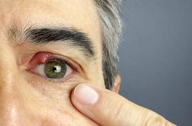 Jęczmień na oku – co stosować, ile trwa, czy jest zaraźliwy?