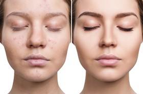 Jak leczyć przebarwienia po trądziku?