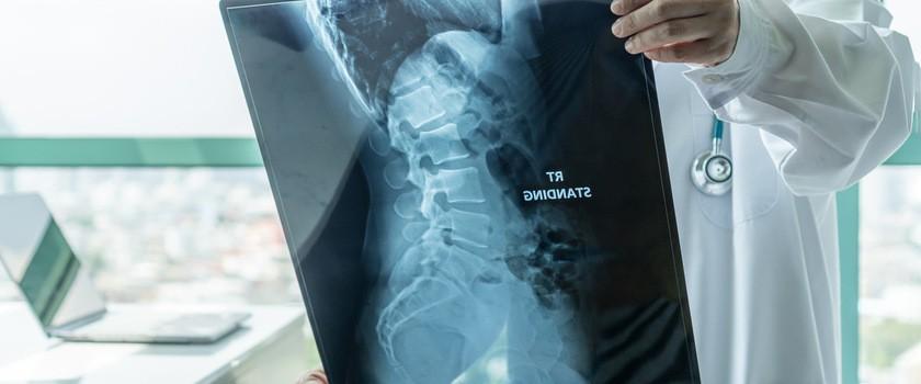 Rozszczep kręgosłupa – na czym polega spina bifida? Jak wygląda leczenie i rehabilitacja dzieci i dorosłych z rozszczepem kręgosłupa?