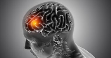 Szybka diagnostyka groźnego guza mózgu dzięki badaniu krwi? Powstała nowa metoda wykrywania glejaka