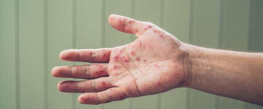 GIS ostrzega: rośnie liczba przypadków odry