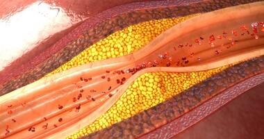 Zidentyfikowano potencjalną substancję przeciwmiażdżycową