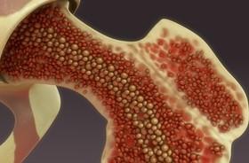 Szpik kostny – jakie funkcje pełni w organizmie? Jakie choroby szpiku występują najczęściej?