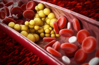 Podwyższone trójglicerydy – o czym świadczą wysokie trójglicerydy i jak obniżyć ich poziom?