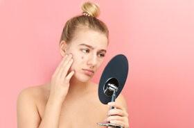 Trądzik pospolity – przyczyny, leczenie, pielęgnacja skóry trądzikowej